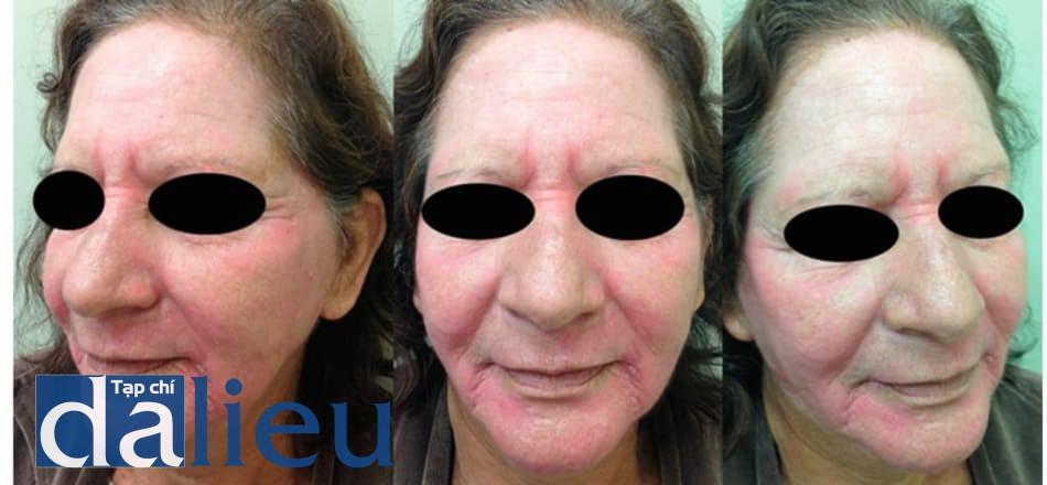 Hình 11: Dung dịch Jessner + Trichloroacetic 35% + Laser CO2 – Ngày thứ 15 sau điều trị.