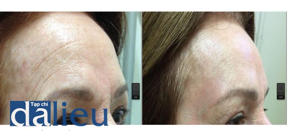 Hình 12: Phối hợp điều trị với botolinum toxin A. 21 ngày sau peel toàn bộ mặt với phenol 35% và dầu croton 1,2 %, bệnh nhân đã hồi phục biểu cảm khuôn mặt và sẵn sàng để có thể tiêm botox sau peel nhằm tăng cường duy trì tác dụng của peel đối với các nếp nhăn.
