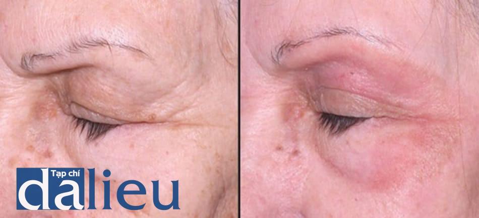 Hình 13: phối hợp tiêm filler với peel phenol-dầu croton. Sau 3 tháng peel toàn bộ da mặt với phenol 35% và 1.2% dầu croton, vùng quanh ổ mắt peel với công thức mạnh hơn chưa dầu croton 1.6% (vẫn còn thấy đỏ da và tăng sắc tố sau viêm trong hình), bệnh nhân được tiêm filler ở vùng má. Trong trường hợp này, 30% polymethyl meth- acrylate được tiêm với cannula nhỏ 21G, kết quả đạt được rất khả quan. Trái: trước peel. Phải: trước filler.
