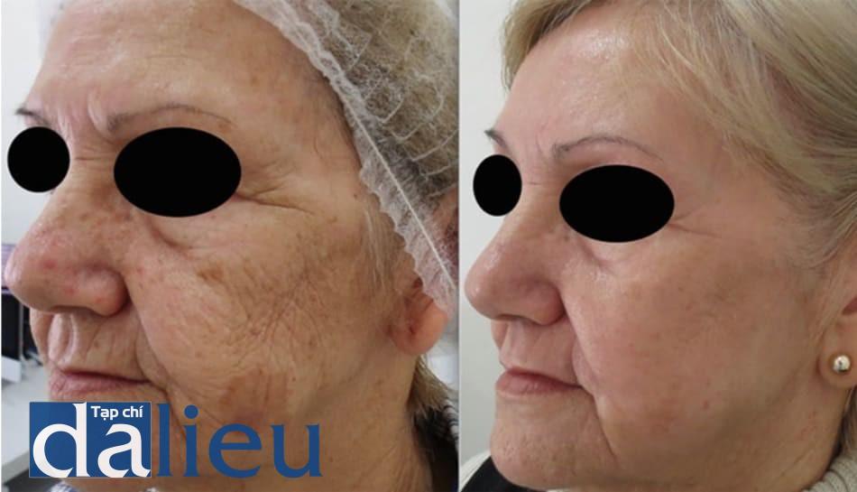 Hình 14: Điều trị phối hợp nhiều phương pháp với peel phenol-dầu croton. Trước (trái) và 1 năm sau (phải) peel toàn bộ da mặt với phenol 35% và dầu croton 1.2%, vùng quanh mắt peel với phenol 30% và dầu croton 1.6%, sau đó filler sâu polymethyl methacrylate 30% với cannula nhỏ 21G, kết quả đạt được khả quan. 2 tháng sau peel bệnh nhân cũng được phối hợp với Q-switched 532 mm để điều trị những dát dày sừng tuyến bã còn lại ở đường hàm.
