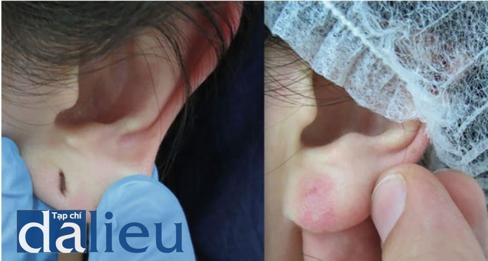 Hình 15: Điều trị khe hở tai với 5 lần bôi dung dịch chứa 1 giọt dầu croton mỗi ml dung dịch phenol 88% (dung dịch pha sẵn mạnh nhất, 4% dầu croton) cách nhau mỗi 14 ngày, phối hợp với filler hyaluronic acid ở vùng sẹo lõm còn lại. Đỏ da kéo dài vẫn còn sau 4 tháng từ lần peel cuối cùng.