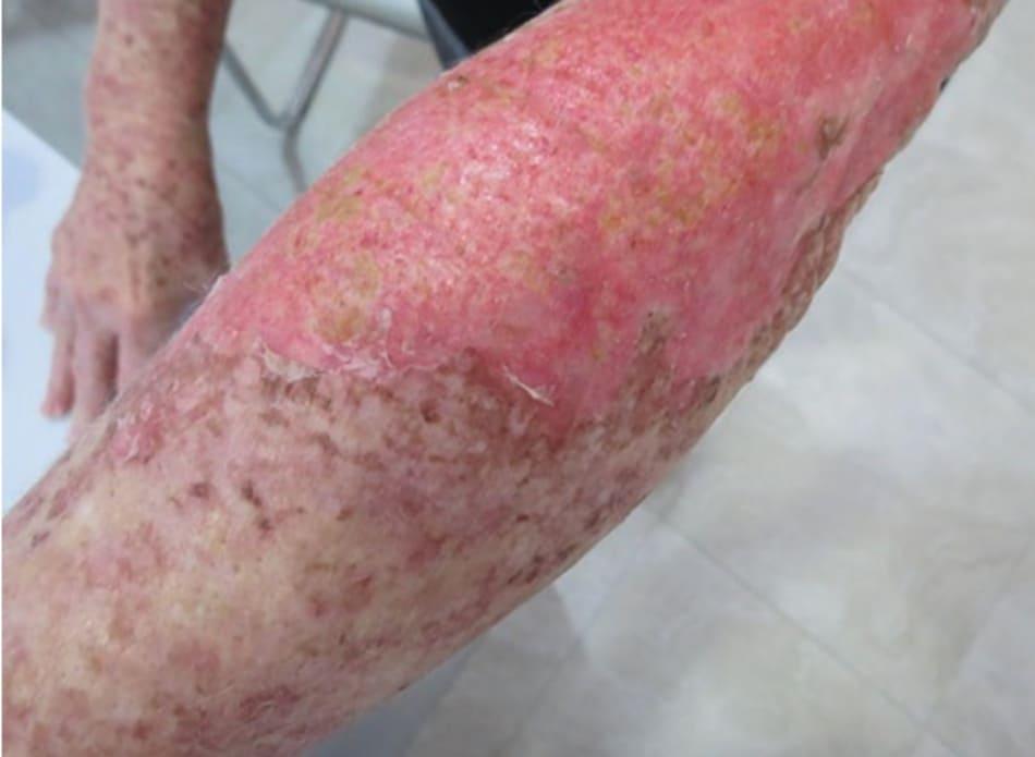 Hình 17: 2 tuần sau khi điều trị phối hợp giữa peel phenol 35% + dầu croton 0.8% để điều trị những nếp nhăn sâu ở cánh tay và cẳng tay (đỏ da và đóng mài vàng/nâu) với peel bằng Laser Nd-YAG 532 nm (Q-switched tần số kép) ở vùng chi không có nếp nhăn (vảy tăng sắc tố)