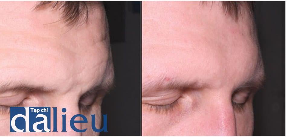 Hình 9: phối hợp tiêm botulinum toxin A trước khi peel phenol-dầu croton. Bệnh nhân thấy ít đau hơn và các chuyển động khuôn mặt bị ức chế trong khoảng thời gian sau peel, giúp đạt kết quả tốt hơn; tuy nhiên, có nguy cơ làm giảm thời gian ức chế thần kinh cơ do khả năng làm lành thần kinh của hóa chất trong dầu croton. Trong trường hợp này, sau 3-4 tháng những vận động trên khuôn mặt của bệnh nhân hoàn toàn được hồi phục, mà bình thường thời gian cần tiêm lại là 5-6 tháng. Trái: trước. Phải: sau 4 tháng, đây cũng là thời điểm tiêm lại botulinum toxin A.