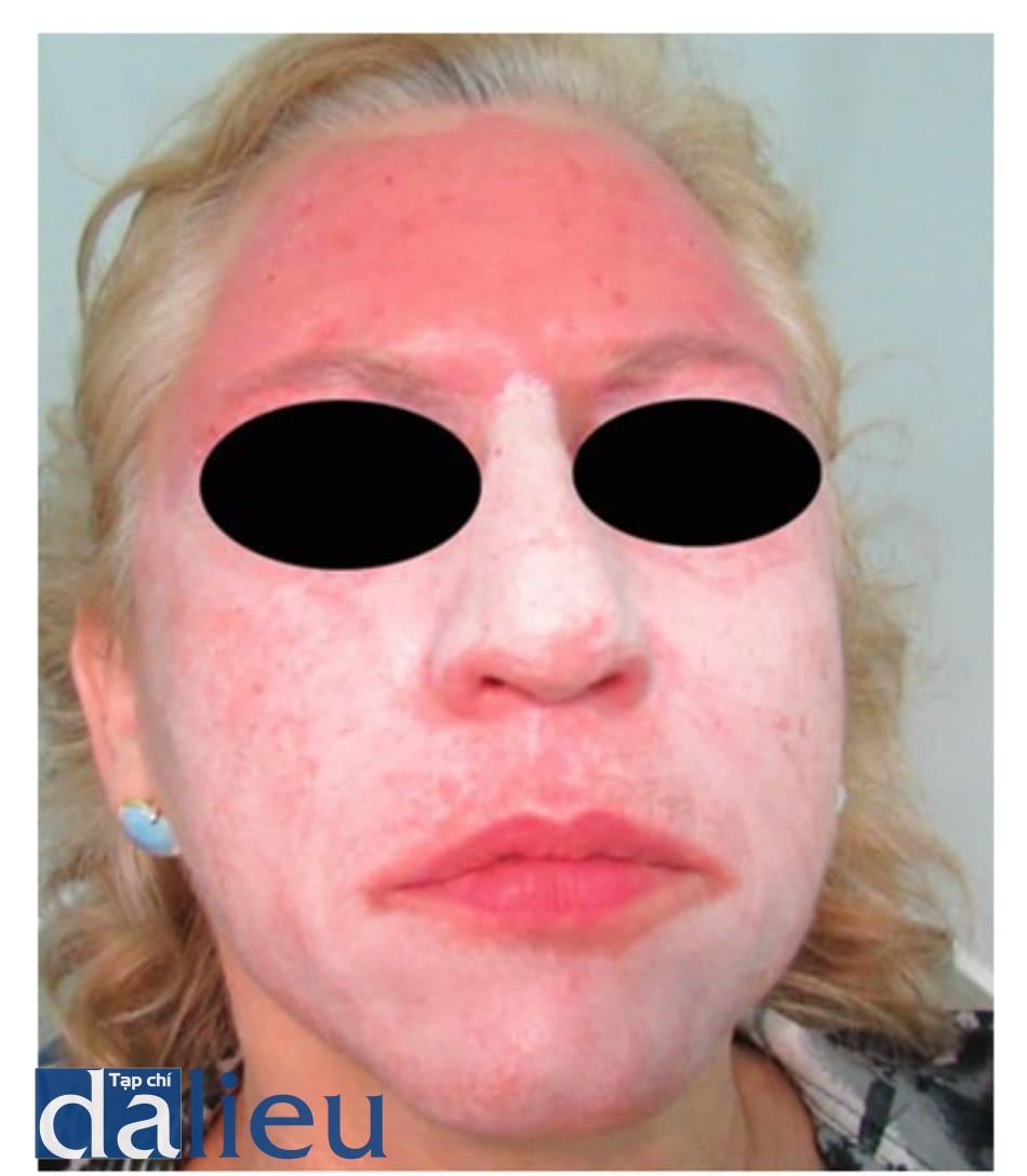 Hình 10: Điều trị phối hợp nhiều phương pháp. Đầu tiên can thiệp với phenol 35% và dầu croton 1.6% ở vùng trán (vùng trán đỏ trên hình) kết hợp với tiêm poly-L-lactic acid ở vùng má và quanh miệng, sau 14 ngày tiến hành tiêm botulim- un toxin A ở vùng 1/3 trên của mặt (các đốm đỏ trên mặt) và peel trung bình theo Monheit ở 2/3 dưới khuôn mặt (lớp frost trắng). Hình 10: Điều trị phối hợp nhiều phương pháp. Đầu tiên can thiệp với phenol 35% và dầu croton 1.6% ở vùng trán (vùng trán đỏ trên hình) kết hợp với tiêm poly-L-lactic acid ở vùng má và quanh miệng, sau 14 ngày tiến hành tiêm botulim- un toxin A ở vùng 1/3 trên của mặt (các đốm đỏ trên mặt) và peel trung bình theo Monheit ở 2/3 dưới khuôn mặt (lớp frost trắng).