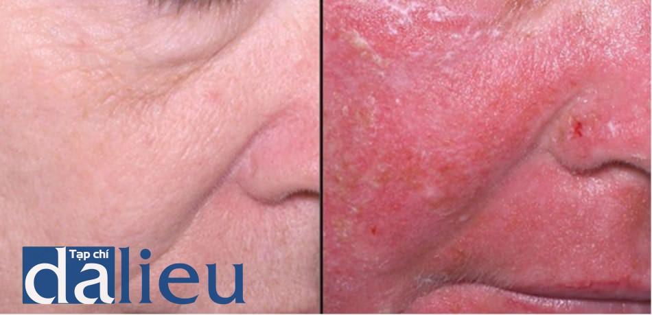 Hình 4: peel phenol-dầu croton. Đỏ da xuất hiện vào ngày thứ 7.