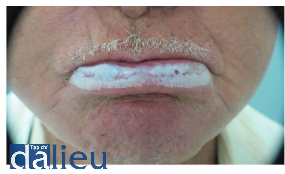 Hình 5: Điều trị viêm môi do ánh sáng bằng peel phenol-dầu cro- ton mạnh nhất ở môi dưới. Nồng độ dầu croton là 4% (một giọt dầu croton trong mỗi ml dung dịch phenol 88%)