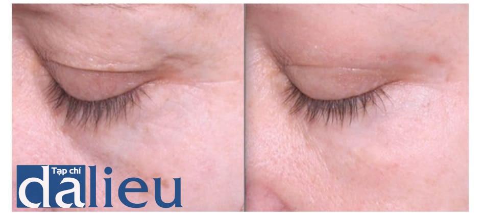 Hình 6: phối hợp điều trị phenol 35% và dầu croton 0.4% ở vùng quanh ổ mắt với peel trung bình bằng công thức của Monheit (peel dung dịch Jessner sau peel TCA 35%) ở vùng còn lại của mặt. Trái: trước điều trị. Phải: sau 30 ngày.