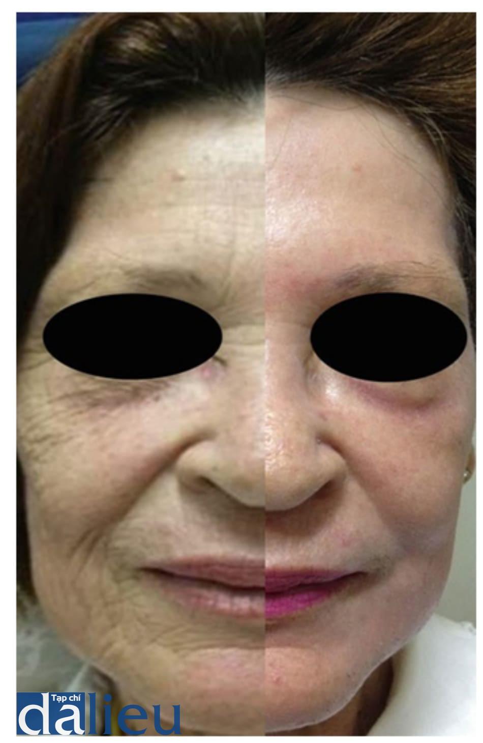 Hình 7: peel toàn bộ mặt với phenol-dầu croton, bỏ qua vùng dưới quanh ổ mắt do vùng dưới mắt quá lỏng lẻo (snap-back test dương tính). sau 30 ngày, peel vùng dưới ổ mắt với peel nông bằng dung dịch Jessner sau khi peel bởi TCA 35% (theo cách peel của Monheit). Phải và trái: cùng một bên, bằng chứng là nốt nevus trong thượng bì ở vùng trán. Trái: trước. Phải: 2 tháng sau peel phenol-dầu croton và 1 tháng sau phương pháp peel của Monheit ở vùng dưới mí.