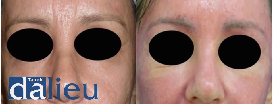 Hình 8: peel toàn bộ da mặt bằng phenol- dầu croton để điều trị sẹo trứng cá. Vùng dưới ổ mắt được chừa lại do co kéo mí mắt dưới không đều do phẫu thuật mí mắt dưới 5 năm trước. Vùng quanh ổ mắt 2 tháng sau đó được điều trị bằng phenol 88% mà không có biến chứng nào. Trái: trước. Phải: 14 ngày sau peel phenol-dầu croton.