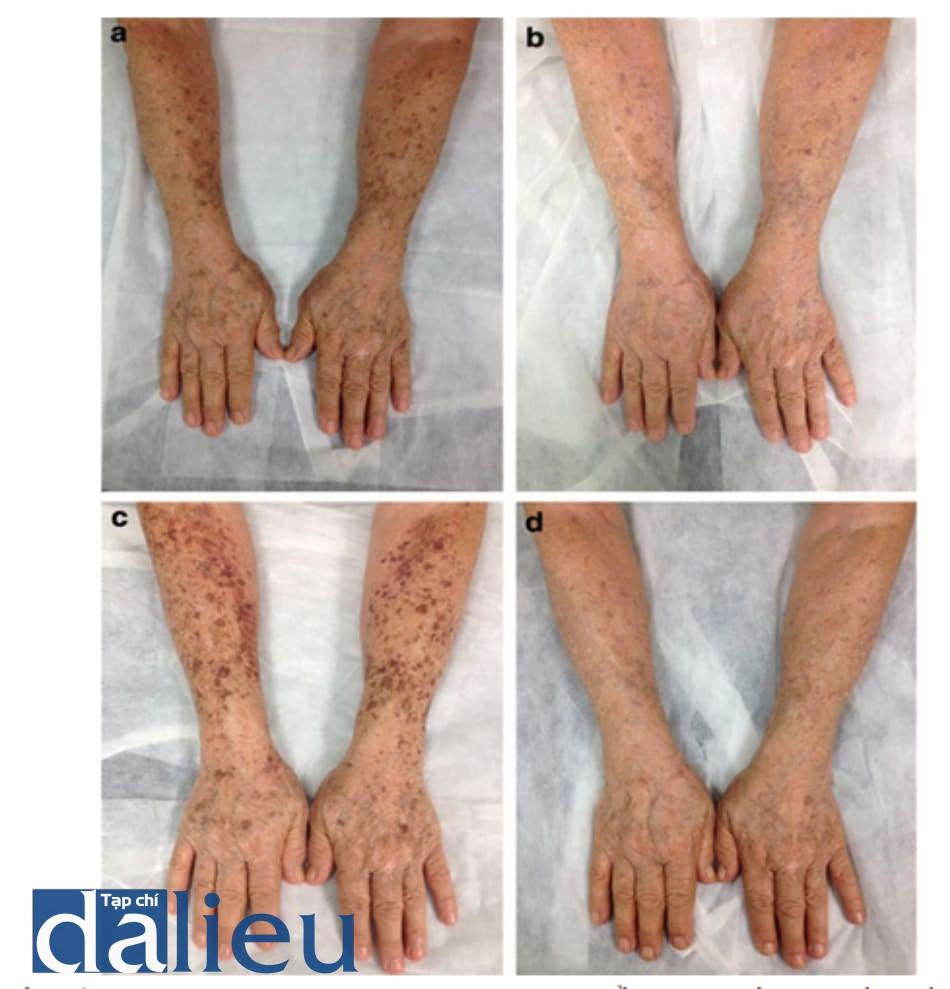 Hình 5: (a-d) Peel trichloroacetic acid 20% trong điều trị lão hóa da do ánh sáng. (a) trước thủ thuật, (b) trong quá trình làm thủ thuật (frosting level 1), (c) vảy và mài nâu (ngày thứ 6), và (d) sau liệu trình thứ nhất (ngày thứ 40).