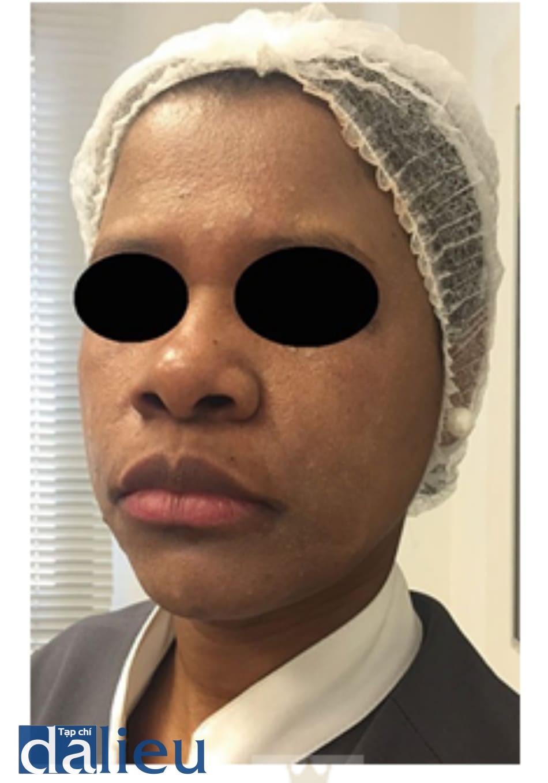 Hình 1: peel retinoic acid trong dung môi màu