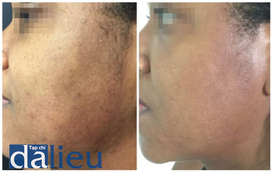 Hình 2: trước và sau một liệu trình peel Cimel: Chất lượng da và tình trạng sắc tố được cải thiện.