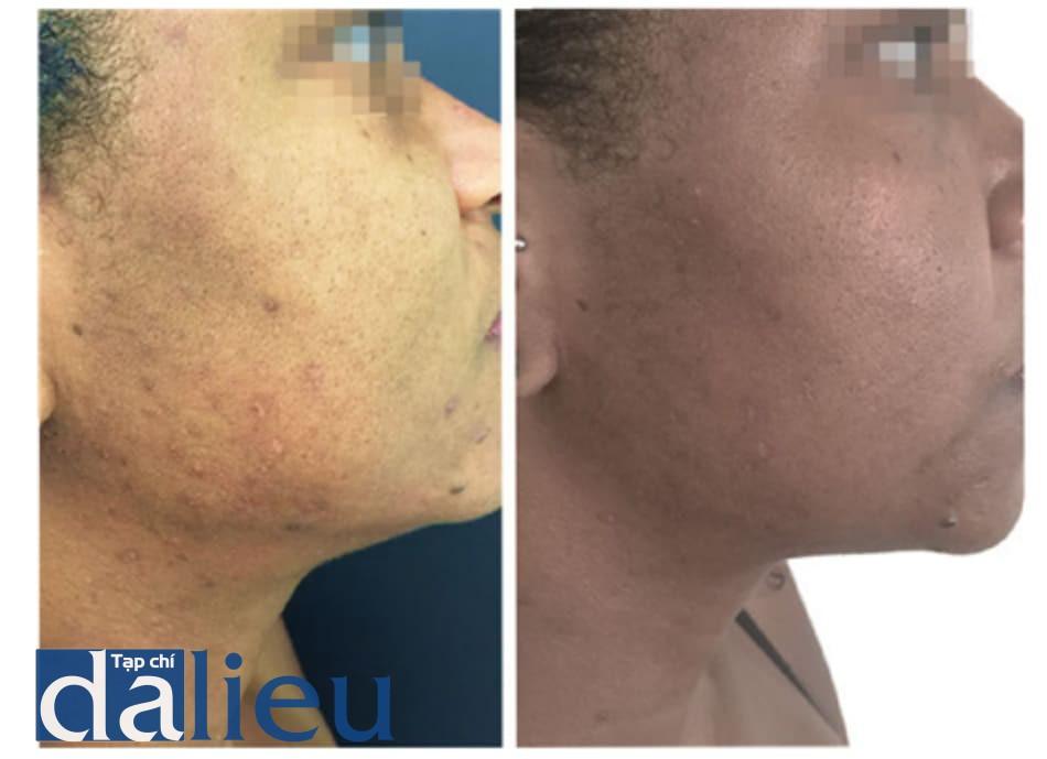 Hình 3: trước và sau 1 liệu trình peel Cimel: sang thương mụn và sắc tố được cải thiện