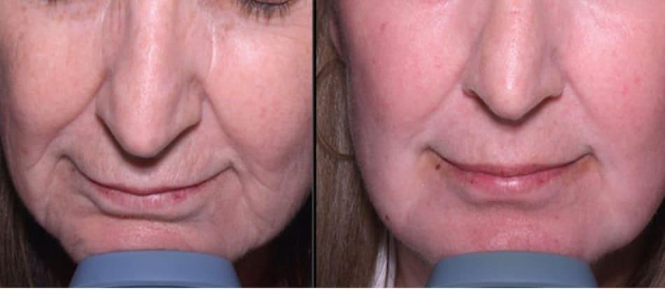 Hình 4: peel phenol-dầu croton thường cho kết quả ngoài mong đợi trong điều trị lão hóa da.