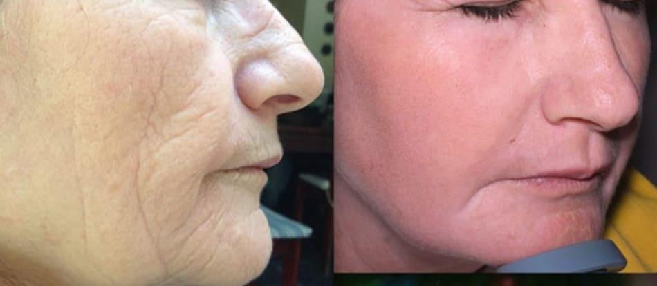 Hình 6: peel bằng phenol-dầu croton giúp trẻ hóa da tự nhiên hơn so với laser và filler phối hợp. Ảnh 2 tháng sau thủ thuật.