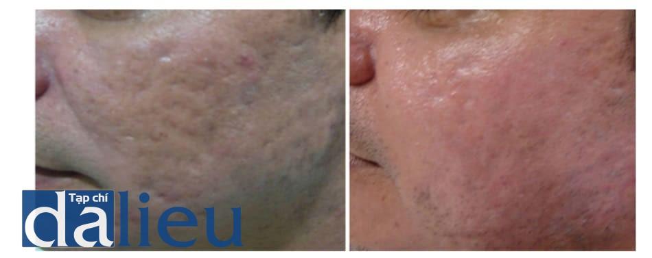 Hình 1: Hình ảnh bệnh nhân 60 ngày sau peel TCA 35% phối hợp để điều trị sẹo trứng cá.