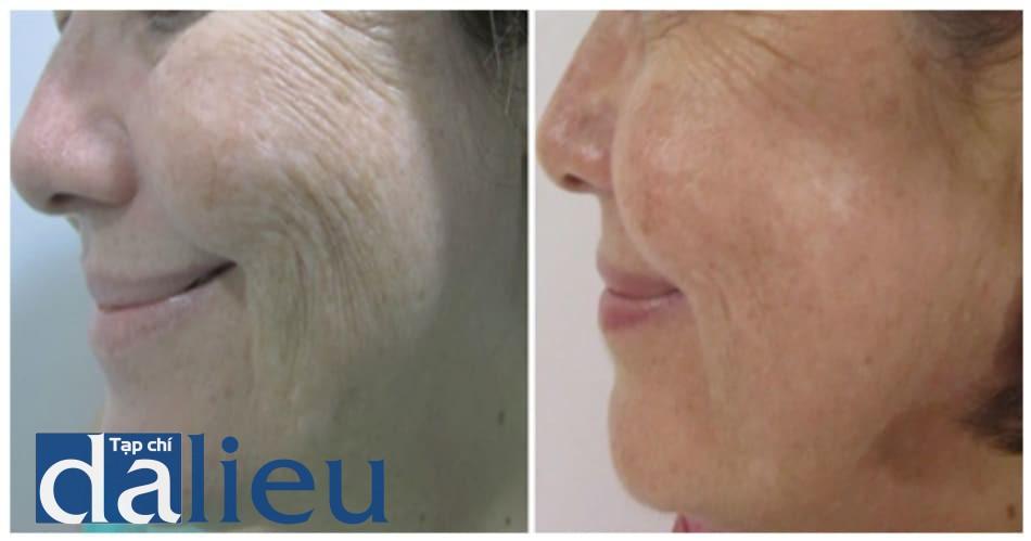 Hình 10: Sự cải thiện nếp nhăn và sệ da sau 30 ngày tiến hành PCIM.