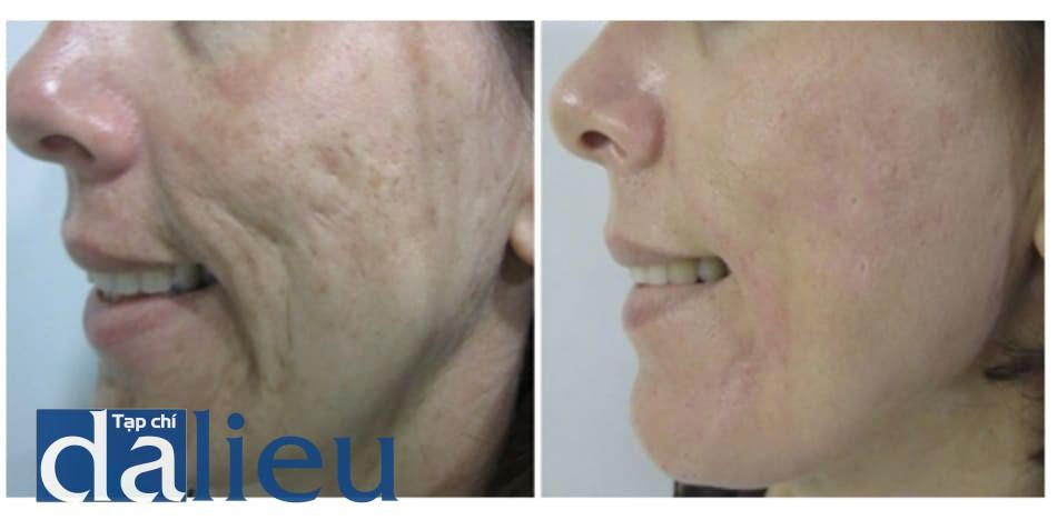 Hình 11: Cải thiện tình trạng sẹo mụn, sệ da, và nám má 30 ngày sau PICM.