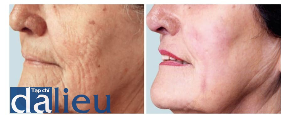 Hình 2: Hình ảnh bệnh nhân 60 ngày sau khi peel TCA 35% phối hợp để điều trị nếp nhăn và xệ da.