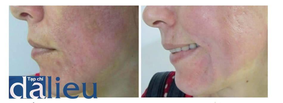 Hình 3: Ảnh bệnh nhân sau 30 ngày và 60 ngày làm thủ thuật, có xuất hiện rối loạn sắc tố và đỏ da kéo dài.
