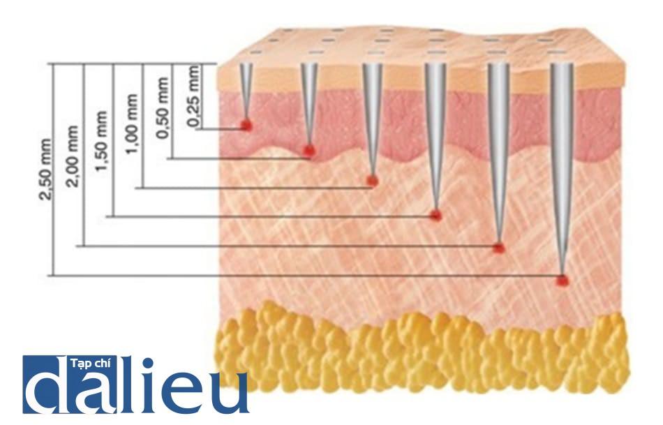 Hình 4: Mối tương quan giữa độ dài của kim và độ sâu khi đâm vào da