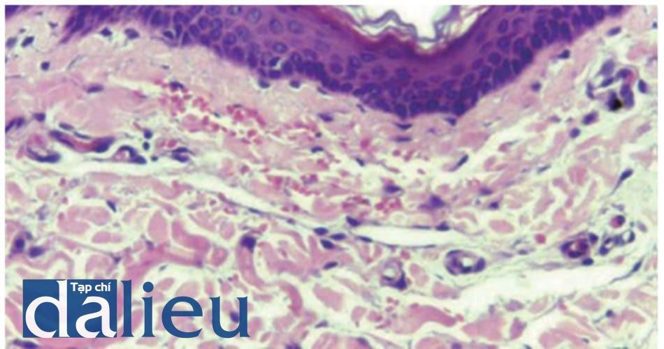 Hình 6: Xuất huyết bề mặt bị giới hạn ở lớp bì nhú khi lăn bằng kim 0.5 mm (HE, 100x)