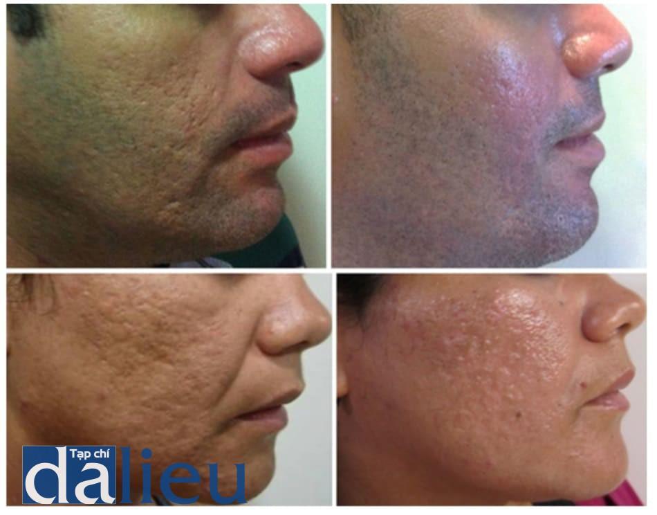 Hình 9: Ảnh bệnh nhân sau 30 ngày làm PCIM với sự cải thiện tình trạng sẹo mụn.