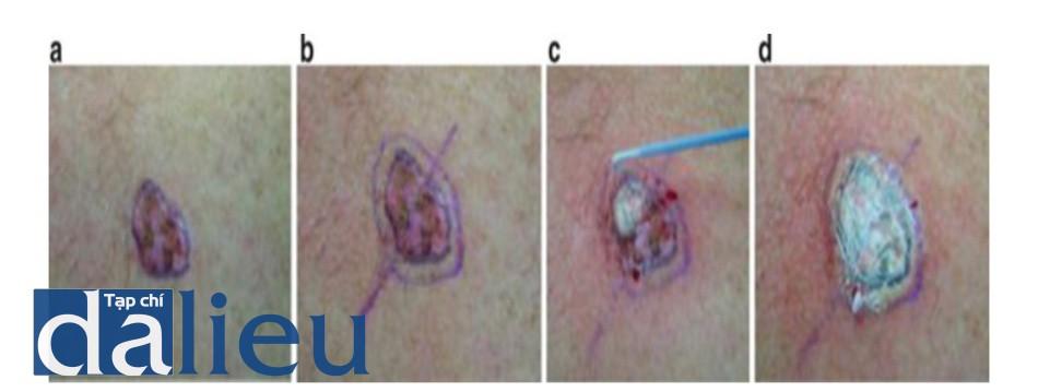 Hình 1: Điều trị ung thư tế bào đáy bằng kĩ thuật phun hở. Đối với tổn thương lớn hơn, cần phải chia tổn thương thành những phần nhỏ để tăng hiệu quả điều trị.