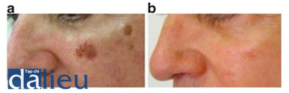 Hình 3: Dày sừng tuyến bã: ảnh trước (a) và sau (b) 1 lần điều trị.