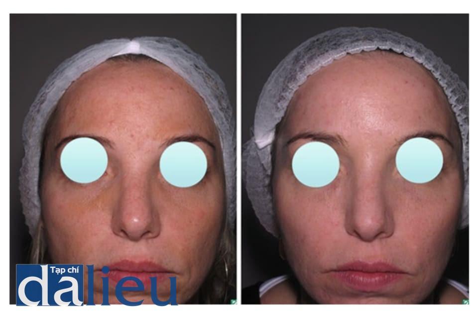 Hình 1: Trước và sau khi peel GA (6 lần, mỗi lần cách nhau 4 tuần) cho bệnh nhân nám má với kết quả thành công