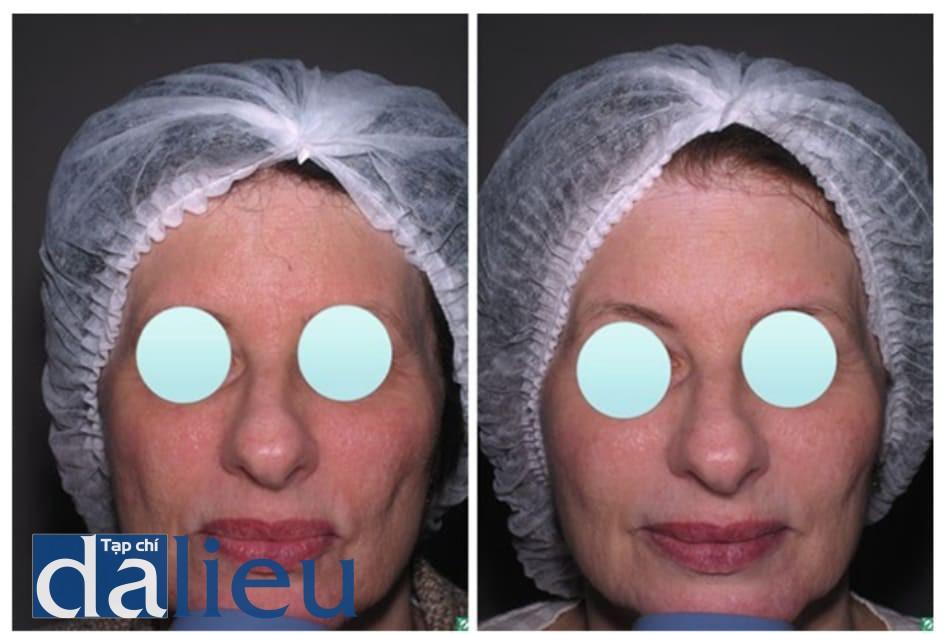Hình 2: Ảnh trước và sau khi lột da bằng glycolic acid (6 lần, mỗi lần cách nhau 4 tuần) điều trị trẻ hóa da cho kết quả thành công (cải thiện kết cấu, nếp nhăn nhỏ, và sắc tố da)