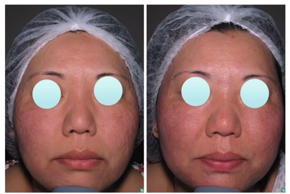 Hình 3: Ảnh trước sau lột da bằng GA (6 lần, mỗi lần cách nhau 4 tuần) trong điều trị sẹo mụn