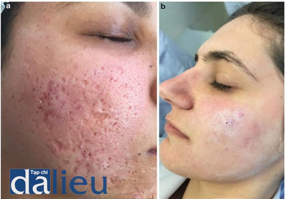 Hình 2. Lớp trắng ở trên da do lắng đọng tinh thể salicylic acid xuất hiện vài phút sau khi bôi: (a) sau khi bôi một lớp SA; (b) sau khi bôi 3 lớp SA.