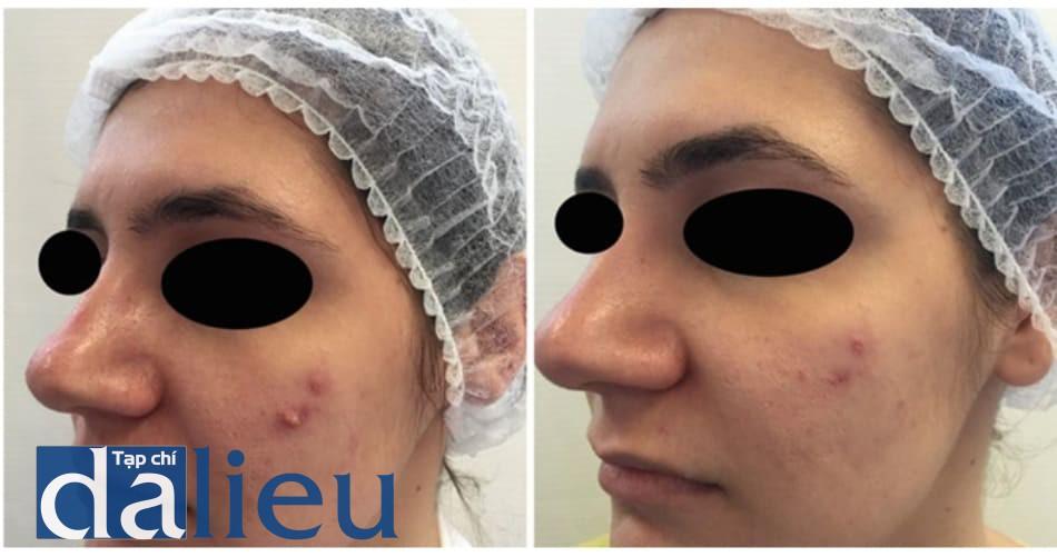 Hình 4. Trước và sau một lần peel. Cải thiện lâm sàng sau 10 ngày.