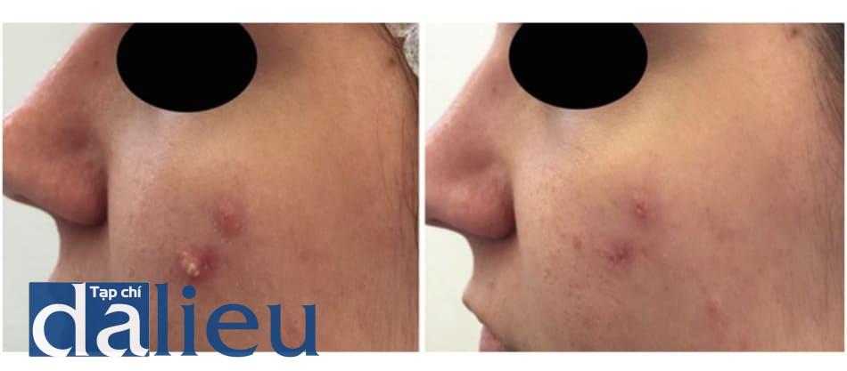 Hình 5. Hình ảnh cận cảnh của cùng bệnh nhân trước và sau một lần peel. Lâm sàng cải thiện sau 10 ngày.