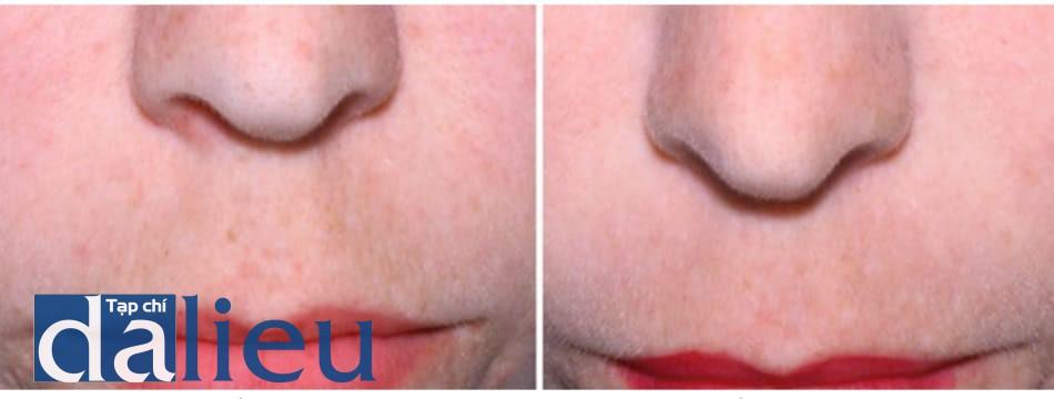 Hình 13: Giảm sắc tố da sau khi thực hiện 1 lần liệu pháp phối hợp Q-switched 1064 LASER toning với peel pyruvic acid 40%.