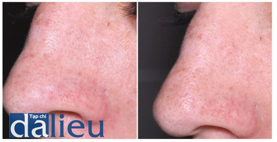 Hình 14: Giảm sắc tố da và kích thước lỗ chân lông sau khi thực hiện 1 lần liệu pháp phối hợp Q-switched 1064 LASER toning với peel pyruvic acid 40%.