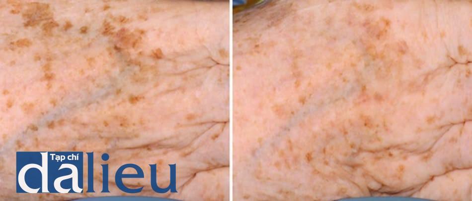 Hình 15: Kết quả sau 2 lần sau peel pyruvic 50% + peel điểm bằng TCA 40% cho các đốm sắc tố ở tay