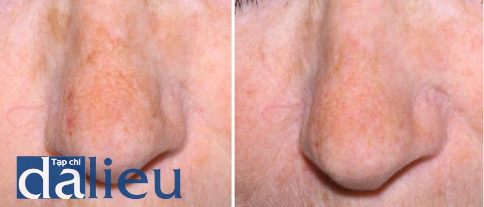 Hình 16: Kết quả sau 1 lần peel pyruvic acid 50% toàn bộ mặt sau khi peel bằng TCA 35% trên mảng tăng sắc tố.
