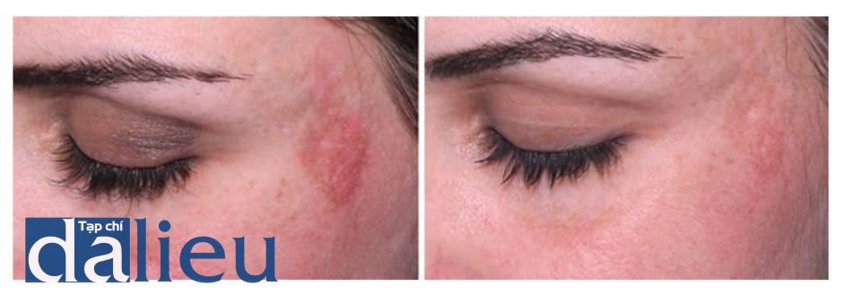 Hình 18: Frost trong quá trình peel pyruvic acid ở vùng dễ tổn thương gây đỏ da nặng kéo dài, tiếp theo đó là tăng sắc tố sau viêm ở vùng kích thích do dùng kem dưỡng trắng (trái). PIH giảm xuống mức độ nhẹ sau 4 tháng điều trị với Q-switched 1064nm laser peel và công thức Kligman (phải)