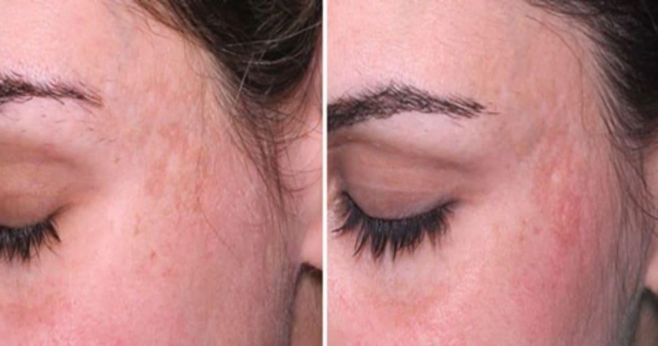 Hình 19: sau peel pyruvic acid một lần (trái). PIH giảm sau 4 tháng điều trị với Q-switched 1064nm laser peel và công thức Kligman (phải)