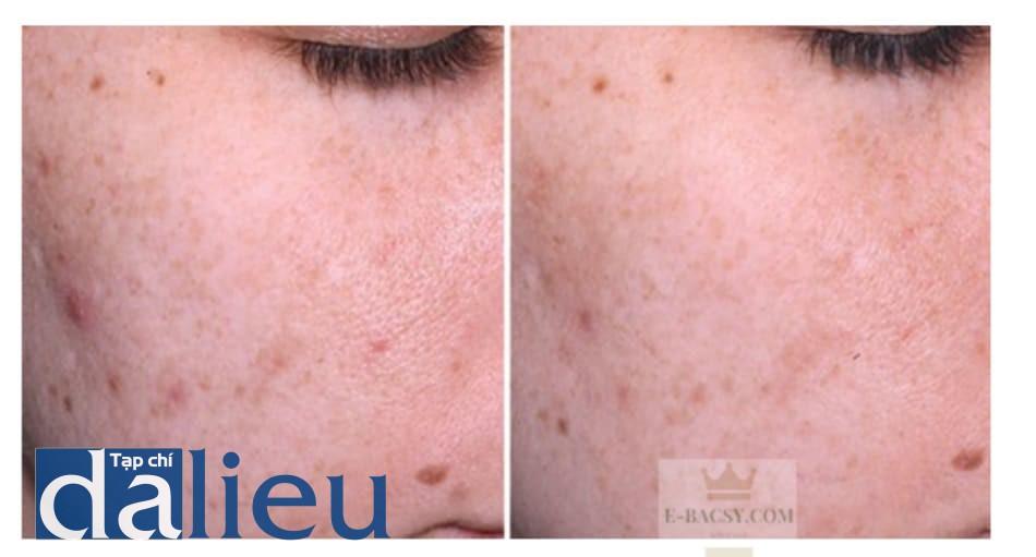Hình 5: kết quả 10 ngày sau một liệutrình peel bằng pyruvic acid 40%. Sự giảm sẩn mụn và giảm lỗ chân lông cho thấy được hiệu quả giảm viêm của phương pháp