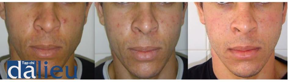 Hình 6: Loạt hình ảnh bệnh nhân sau peel pyruvic acid mỗi tuần. Lần thứ nhất được thực hiện với dung dịch pyruvic acid 40%, lần thứ hai với 50%.