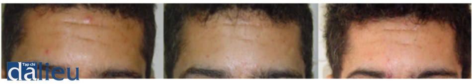Hình 7: Loạt hình ảnh bệnh nhân sau peel pyruvic acid mỗi tuần. Lần thứ nhất được thực hiện với dung dịch pyruvic acid 40%, lần thứ hai với 50%.