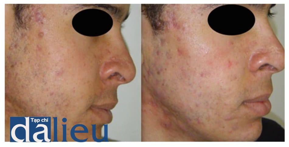 Hình 8: Kết quả sau một lần peel bằng pyru- vic acid 40% cho bệnh nhân bị mụn viêm.