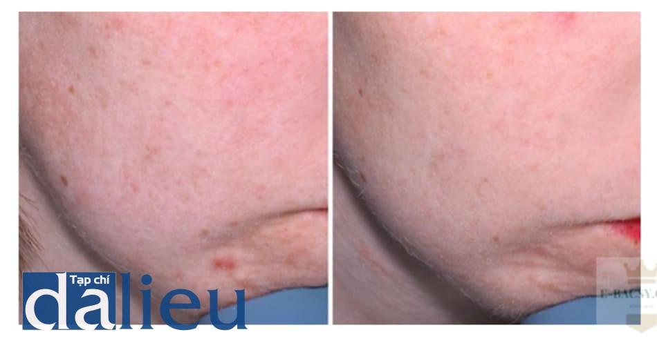 Hình 9: kết quả sau peel 1 lần với pyruvic 40%, phối hợp với peel bằng 5% retinoic acid