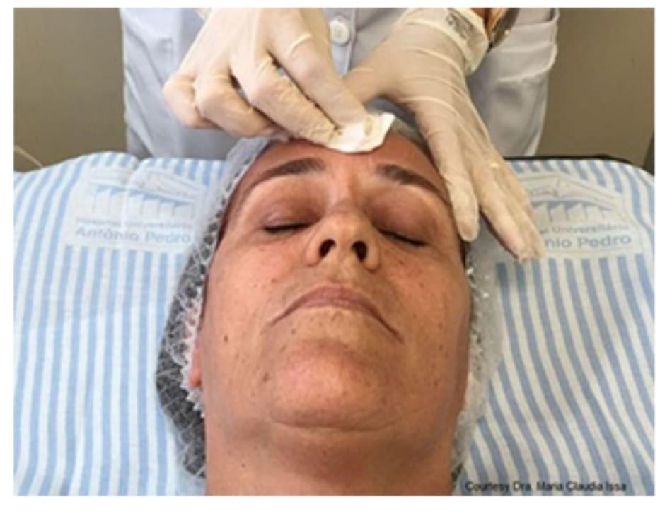 Hình 2: Bắt đầu peel ở vùng trán, sau đó đến vùng má, sống mũi, cằm và quanh miệng.