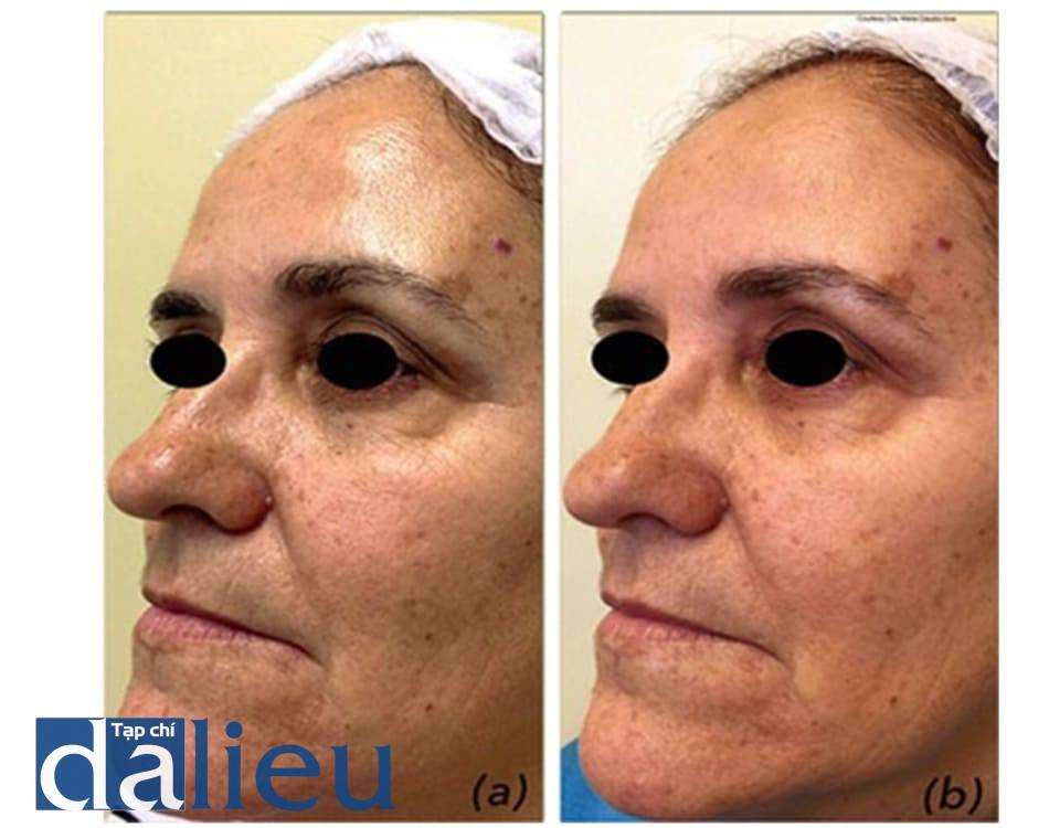 Hình 5: Hình ảnh trước (a) và sau (b) Jessner peel (2 lần peel) để cải thiện cấu trúc da và lão hóa do ánh sáng ở một phụ nữ có phân độ Fitzpatrick III.