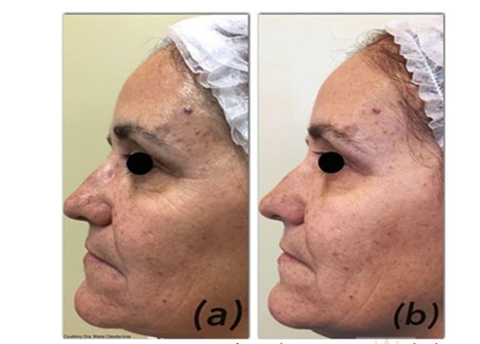 Hình 6: Nhìn kĩ hơn có sự cải thiện đáng kể các nếp nhăn vùng quanh ổ mắt sau 2 lần peel với dung dịch Jessner.