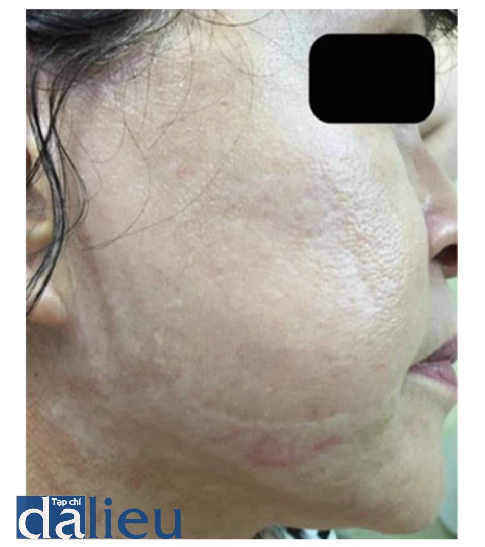 Hình 3: Sẹo sau 6 tháng làm thủ thuật với TCA 50%